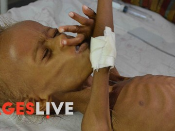 Salim, a five years old child from a village in the province of Al Hudaydah  suffering from extreme malnutrition, receive treatment in one of Al Hudaydah hospital in Yemen
